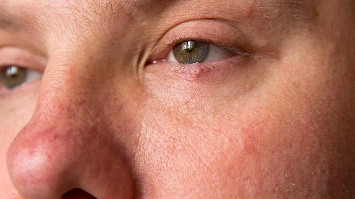 vasos sanguíneos rotos en la cara