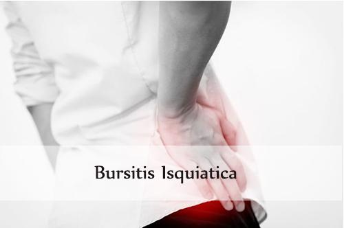 bursitis isquiatica