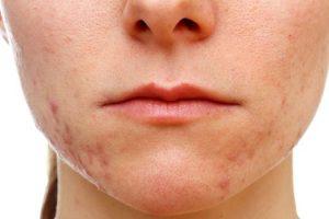 Acerca del acné vulgar y remedios caseros para deshacerse de él