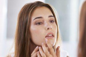 Cómo puedo prevenir el acné