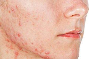 Cómo y por qué las hormonas causan el acné