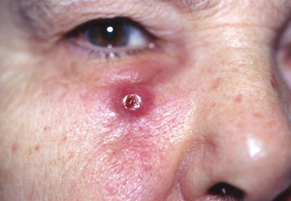 Cancer escamoso de piel