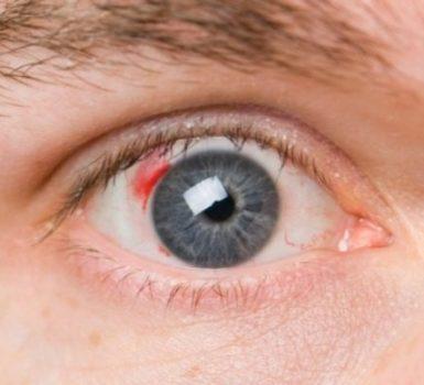 De ojo curar como el coagulo un en sangre