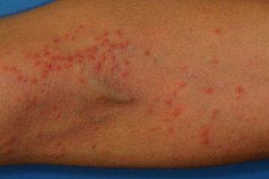 Eccema o Dermatitis Atópica Causas, Síntomas, Tratamiento, Remedios Caseros, Prevención