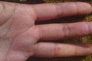 Eritema queratolítico de invierno causas, síntomas, tratamiento, prevención, riesgo