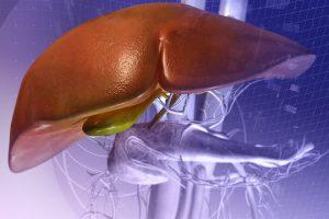 Hepatitis isquémica o Hígado de choque