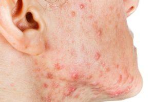 Métodos habituales para tratar el acné quístico y el mejor antibiótico para eliminar el acné quístico
