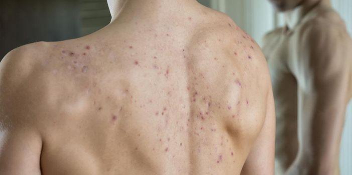 Qué causa el acné en la espalda y los hombros y cómo deshacerse de él
