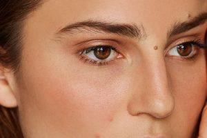Qué es bueno para mi acné