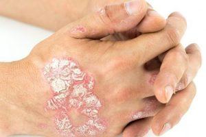 Qué es la Psoriasis en placa y cómo se trata