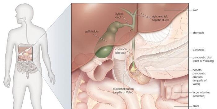 Qué es la colangitis ascendente y cómo se trata