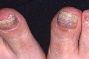 Qué es la tiña unguio, conocer sus causas, síntomas, tratamiento, pronóstico, fisiopatología, diagnóstico