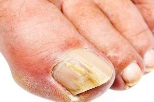Qué es un lecho ungueal, causas y tratamientos del lecho ungueal dañado