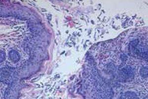 Qué es un tumor folicular capilar o un foliculoma Causas, síntomas, tratamiento
