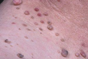 Qué son las pápulas y pústulas