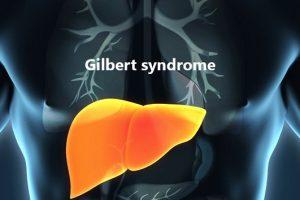 Síndrome de Gilbert