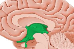 Síndrome diencefálico