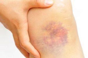 Tratamiento y período de recuperación de la piel delgada Shin Wound