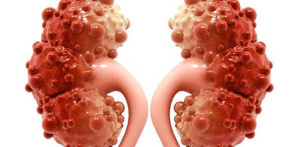Quistes renales: causas, factores de riesgo, síntomas, diagnóstico ...