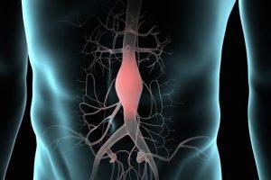 Qué es el aneurisma aórtico abdominal y cómo se repara