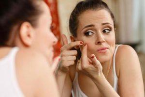 Cómo detectar el acné vulgar en las etapas iniciales y las formas de prevenirlo