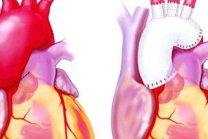 Cómo se repara un aneurisma aórtico torácico