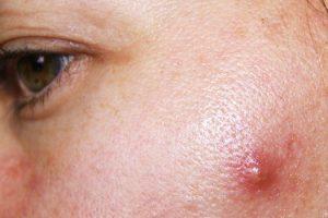 Cuál es la causa del acné quístico y cómo deshacerse de él
