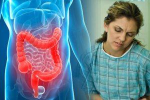 Cuáles son los signos y síntomas de la colitis ulcerosa