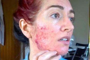 Cuánto tiempo debe tomar Accutane para tratar el acné y cómo funciona