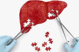 Daño hepático o insuficiencia hepática