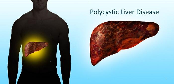 Enfermedad poliquística del hígado