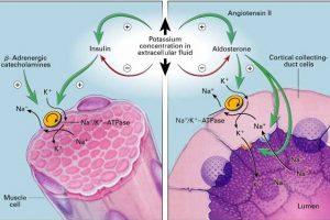 Hipopotasemia