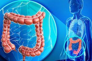 Malrotación intestinal