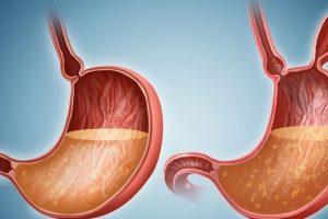Obstrucción intestinal u obstrucción intestinal
