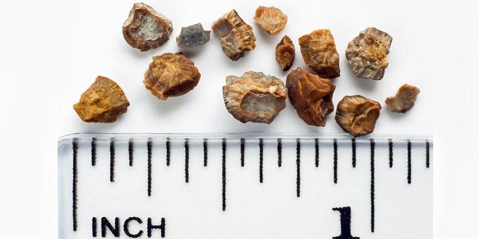 Piedra de riñón Vs GallStone