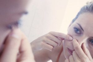 Puede el estrés causar acné