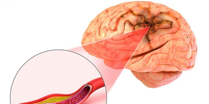 Qué aneurisma es el más común