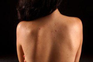 Qué causa el acné en todo el cuerpo