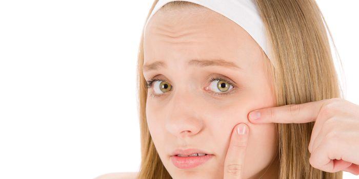 Qué es el acné adolescente y cuánto tiempo dura