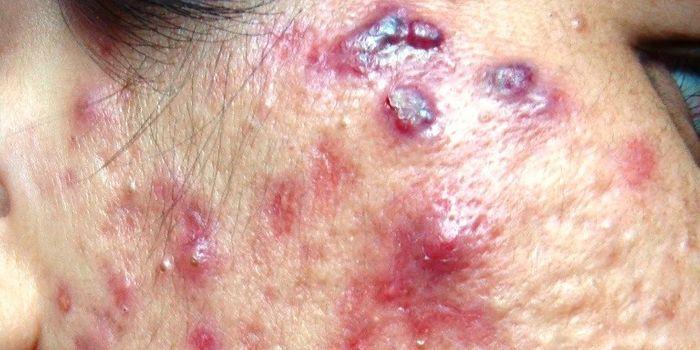 Qué es el acné nodulocístico y cómo se trata