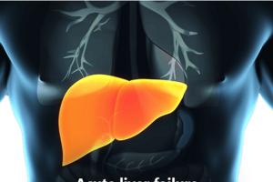 Qué es la insuficiencia hepática aguda y cómo se trata