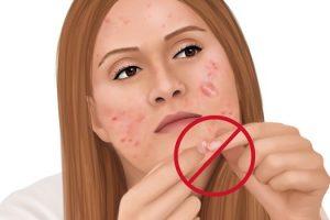 Qué es la lesión del acné