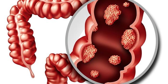 Qué es la poliposis adenomatosa familiar y cómo se trata