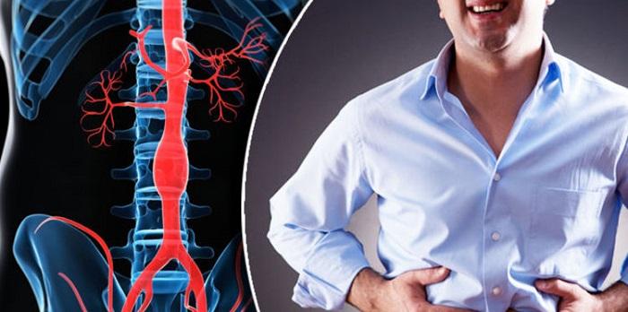 Qué provoca un aneurisma abdominal