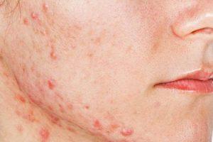 Qué se considera como un acné grave y cuáles son sus causas