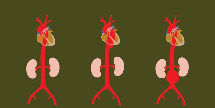 Qué se puede hacer para una aorta agrandada