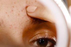 Qué control de natalidad es mejor para el acné