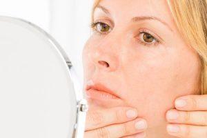 Qué es el acné crónico y cómo deshacerse de él