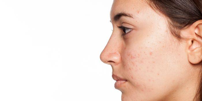 Beneficios de la terapia de luz para el acné y sus efectos secundarios