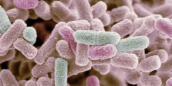 Cuáles son las complicaciones de la colitis microscópica
